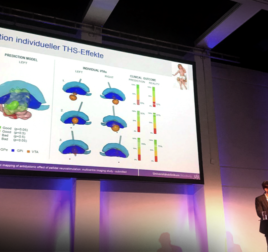 DBS symposium during NeuroWoche in Berlin